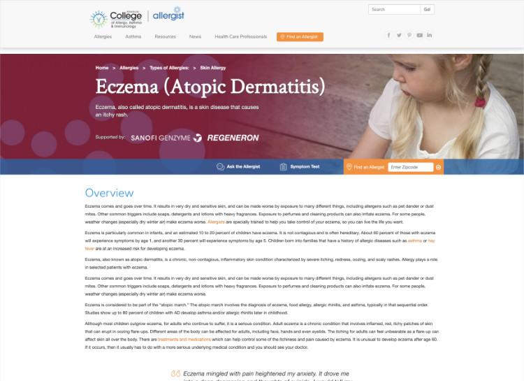 Image of ACAAI eczema web page