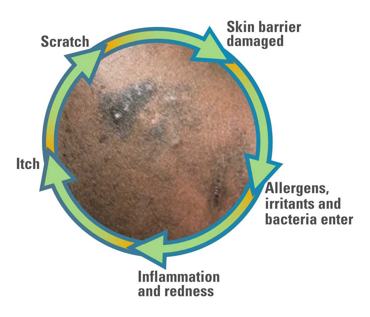 Itch scratch cycle of eczema