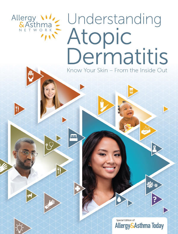 Thumbnail image of the Atopic Dermatitis publication
