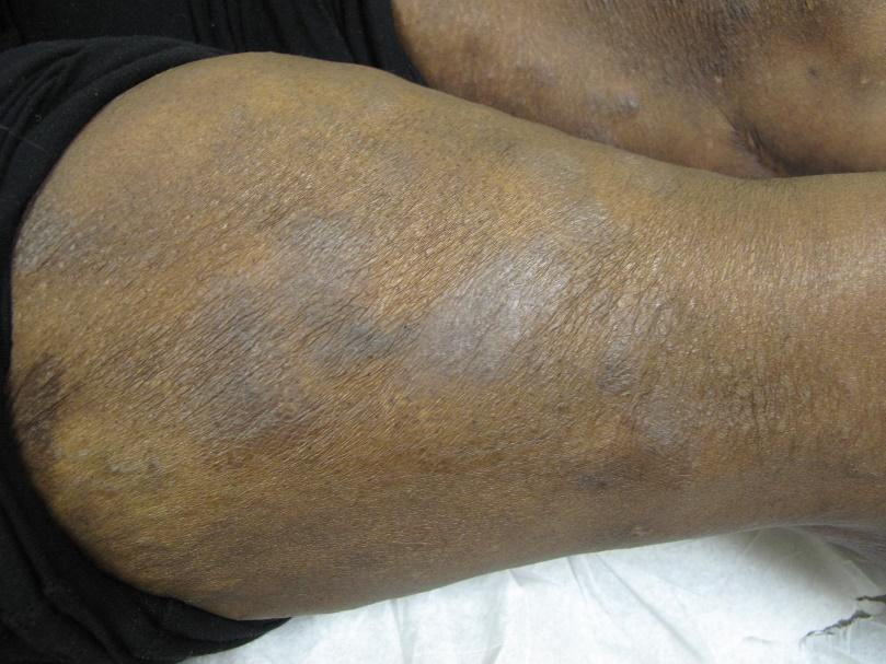 Atopic dermatitis on arm of a person with Black skin showing erythematous patches, lichenification and follicular lesions