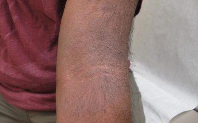 Eczema of arm on brown skin with erythema