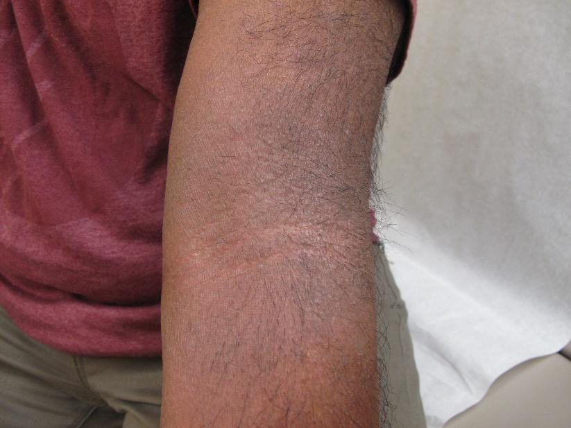 Atopic dermatitis on arm of a person with Brown skin showing erythema