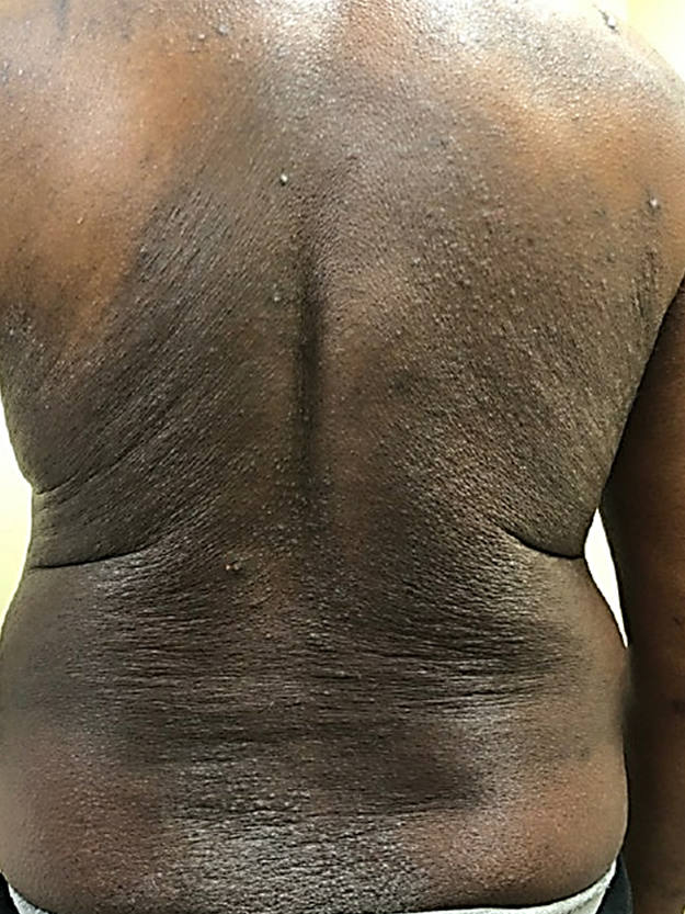 Atopic dermatitis on the back of a person with Black skin showing lichenification, follicular accentuation and hyperpigmentation