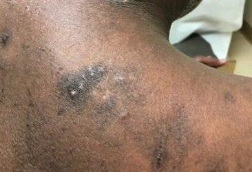 Eczema of back on Black skin with Prurigo Nodularis