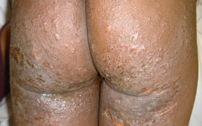 Eczema of buttocks and thighs onBlack skin with impetigo and follicular accentuation