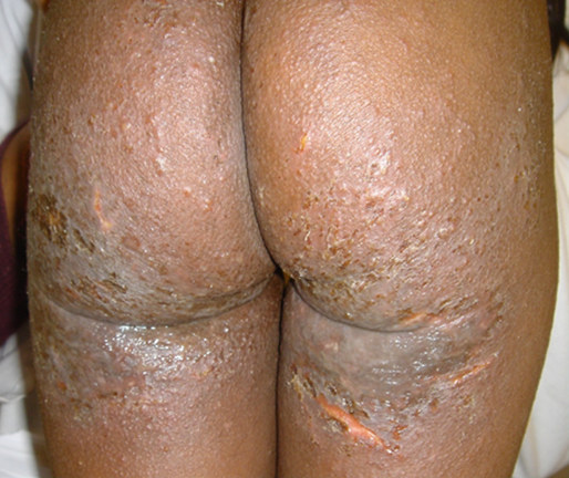 Atopic dermatitis on the buttocks and thighs of a person with Black skin showing impetigo infection and follicular accentuation