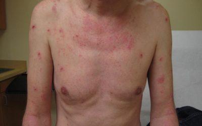 Eczema of chest on white skin with erythema