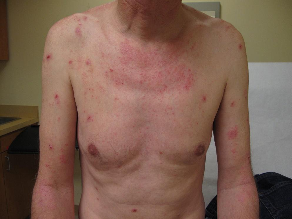 Atopic dermatitis on chest and upper body of a person with White skin showing erythema