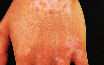 Eczema of hands on brown skin with hypopigmentation