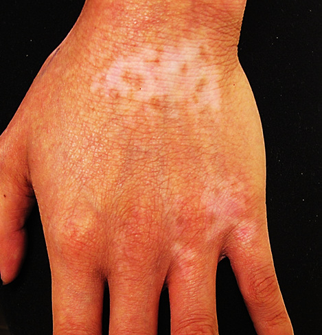Atopic dermatitis on hands of a person with Brown skin showing hypopigmentation