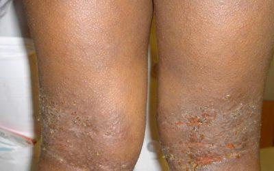 Eczema of knees on Black skin with impetigo and follicular accentuation