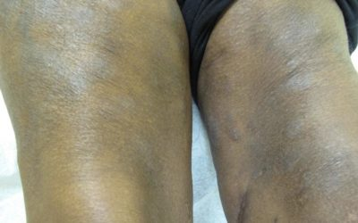 Eczema of legs on Black skin with erythema and lichenification