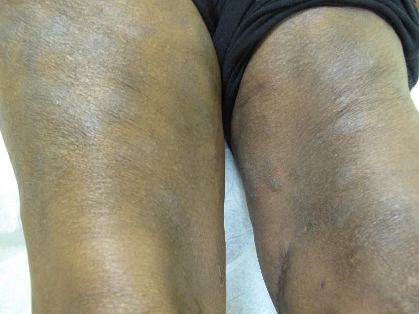 Atopic dermatitis on legs of a person with Black skin showing erythema and lichenification