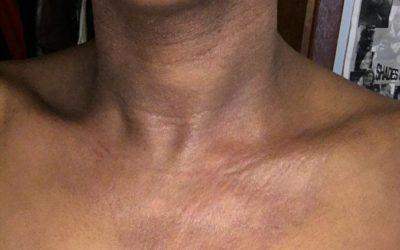 Eczema of neck on Black skin with erythema