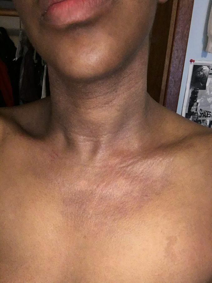 Atopic dermatitis on neck of a person with Black skin showing erythema