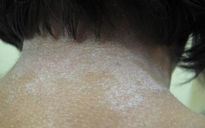 Eczema of neck on Black skin with lichenoid patches