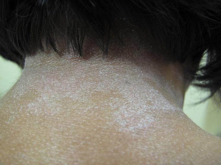 Atopic dermatitis on neck of a person with Black skin showing scaly lichenoid patches, lichenification and follicular lesions.