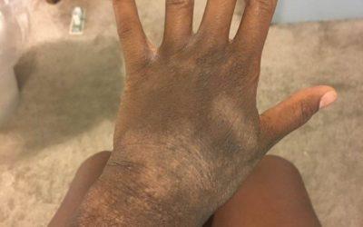 Eczema of wrist on Black skin with erythema and lichenification plus hypopigmentation