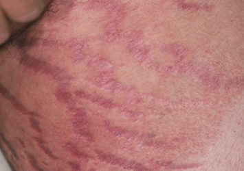 Topical steroid side effect of groin on white skin showing striae