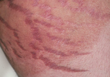 Topical Steroid Side Effect on groin of a person with White skin showing striae