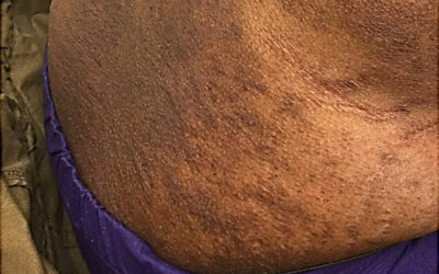 Topical steroid side effect of torso on Black skin with striae