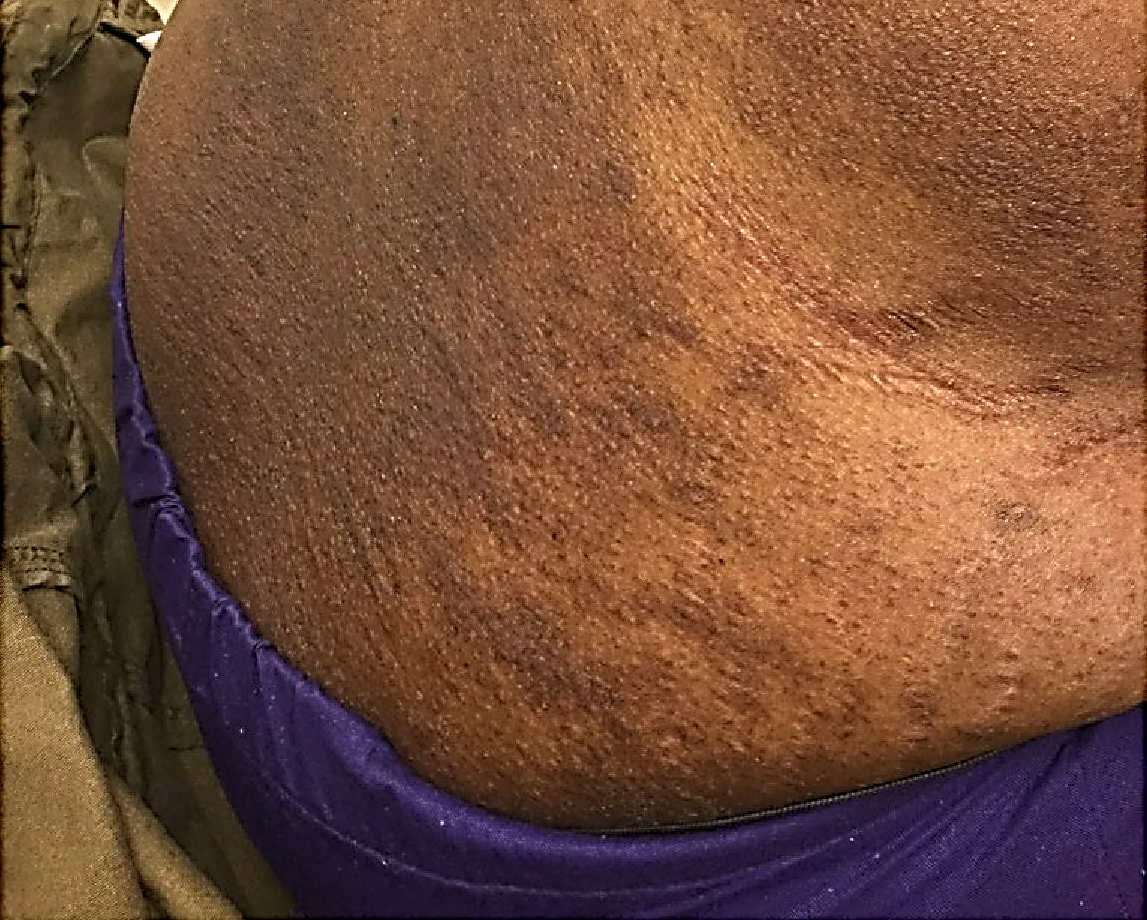 Topical Steroid Side Effect on torso of a person with Black skin showing striae