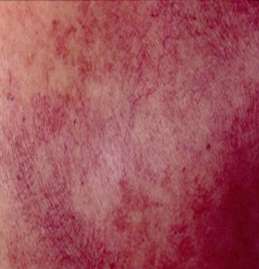 Topical Steroid Side Effect on a person with White skin showing telangiectasia