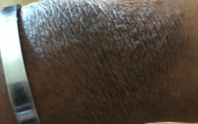 Contact dermatitis on wrist on Black skin