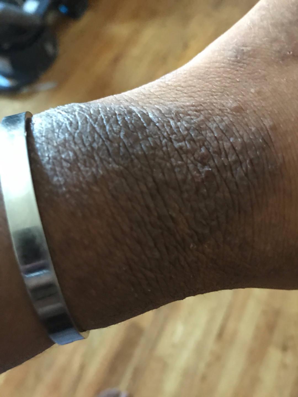 Contact dermatitis Black skin wrist erythema lichenification