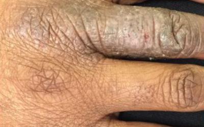 Dishydrotic eczema of hand on Black skin
