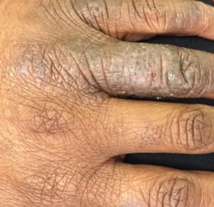 disydrotic eczema Bblack skin hand licenification