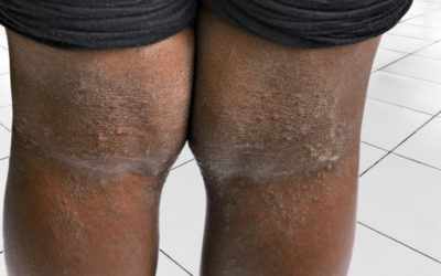 Eczema of legs on Black skin in the flexural area of knee