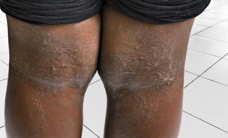 Eczema Black skin legs erythema lichenification